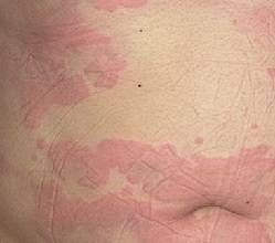 Аллергическая крапивница на животе
