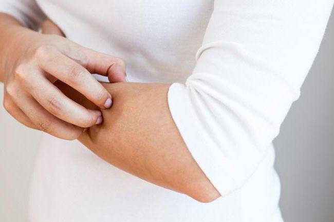 Клиника аллергологии