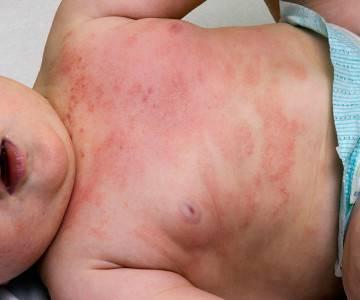 Как определить атопический дерматит у новорожденных