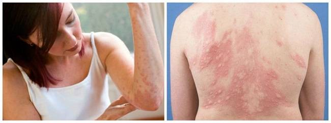 От чего аллергии крапивницы