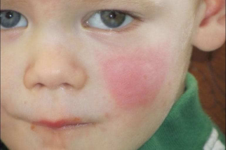 Ребенок аллергия на солнце