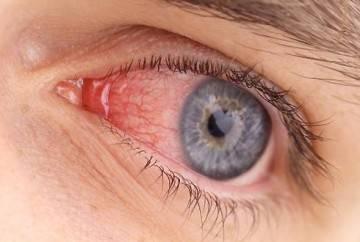 Отек аллергия глаз как снять
