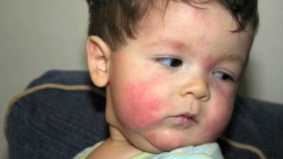 Аллергическая реакция на коже