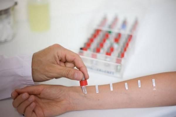 При скарификационных тестах на кожу руки наносят небольшое количество раствора аллергена