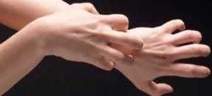 Водянистые пузырьки на пальцах рук