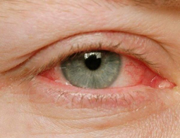 Неприятные симптомы ухудшают качество жизни.