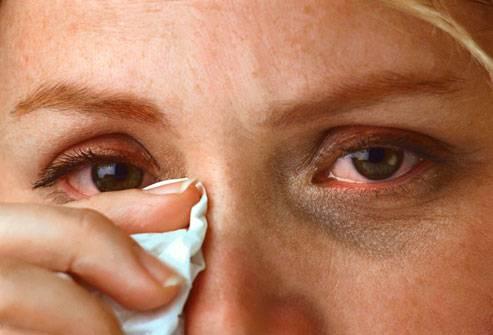 аллергия вокруг глаз фото