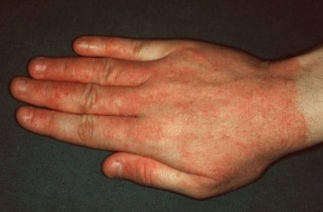 Аквагенная крапивница на руках взрослого