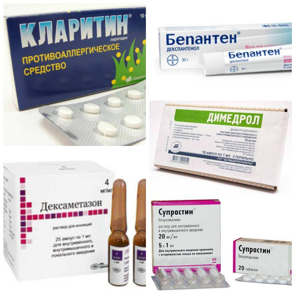 Лечение аллергии