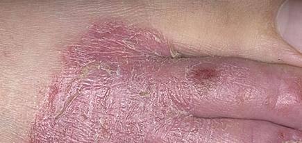Экзема на ногах симптомы
