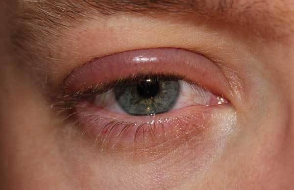 Аллергия век от теней
