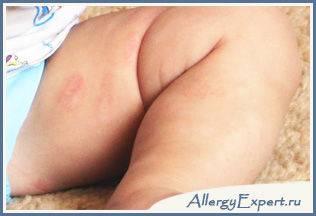 аллергия на смесь как проявляется
