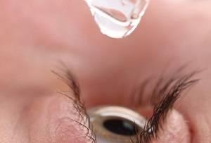 Как облегчить аллергию в глазу