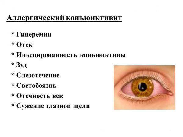 allergicheskij-konyunktivit