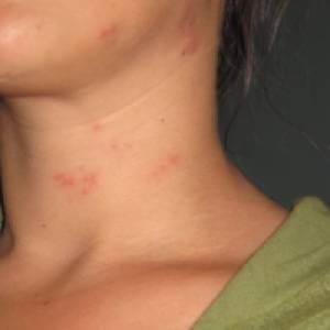 сыпь на шее у женщины