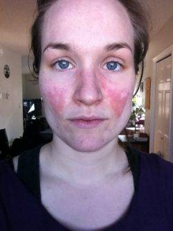 Сыпь на щеках девушки