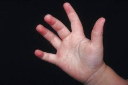 сыпь у ребенка на ногах и руках