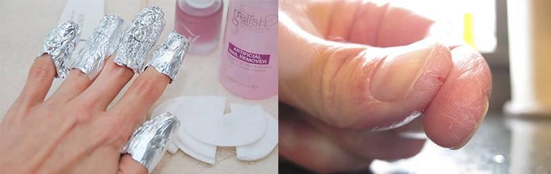 симптомы аллергии на гель-лак, шеллак