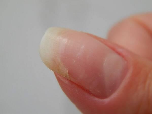 Как проявляется аллергия на гель-лак