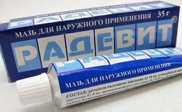 Аллергия на шее фото у взрослых