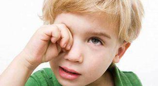 proyavlenie-allergii-u-detej