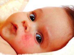 мазь от диатеза у детей