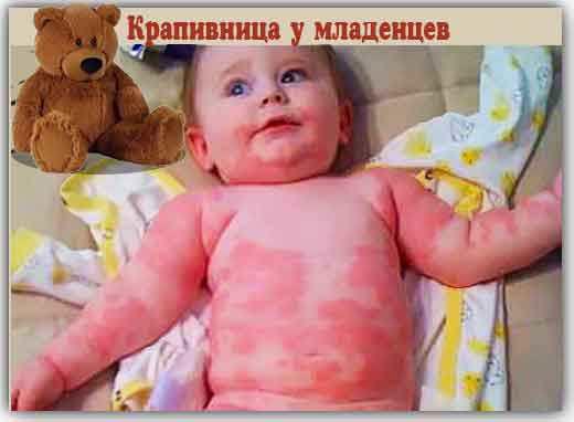 Покраснение кожи у младенца