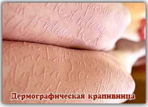 Демографическая или дермографическая сыпь