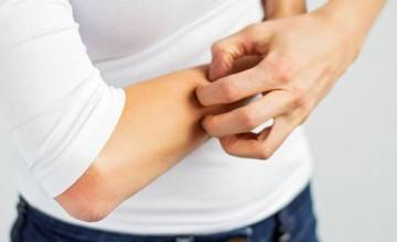 Лекарства от аллергии зуд