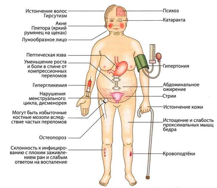 Осложнения от длительного или неправильного приёма глюкокортикостероидов