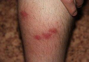 аллергия на ногах у ребенка фото
