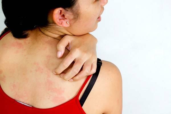 Аллергия  народные средства и рецепты против аллергии