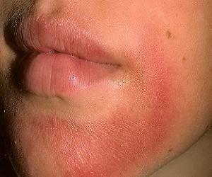 аллергия на солнце на лице у взрослых фото