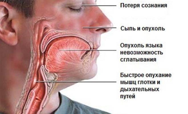 При анафилактическом шоке организм резко и остро реагирует на аллерген.