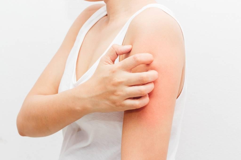 кожная аллергия на мыло фото