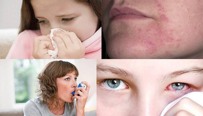 Береза перекрестная пищевая аллергия