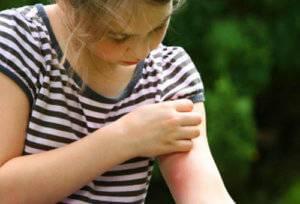 девочка с укусом пчелы на руке