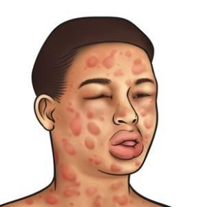 рисунок аллергической реакции после укуса пчелы на лице человека
