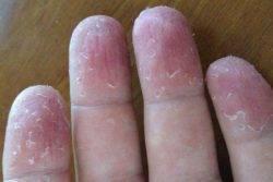 Шелушащаяся кожа как симптом реакции на лак
