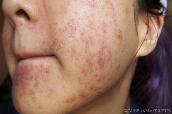 Аллергия чем лечить взрослый
