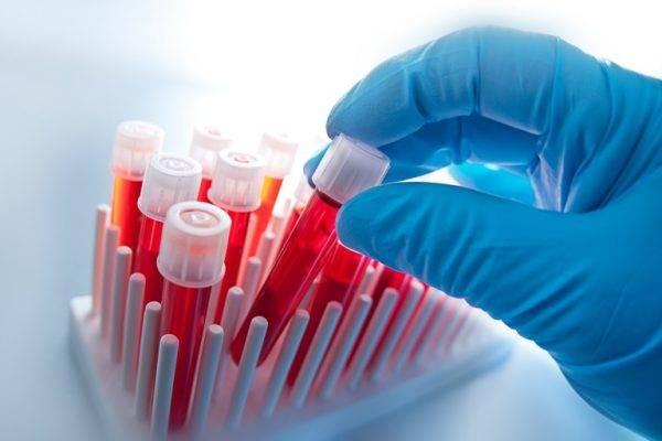 Анализ крови на аллергию показатели