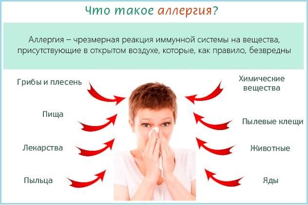 Крапивница лечение в домашних условиях народными средствами