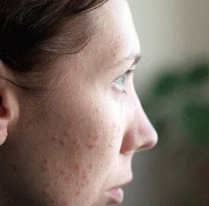 Аллергия. Лечение аллергии