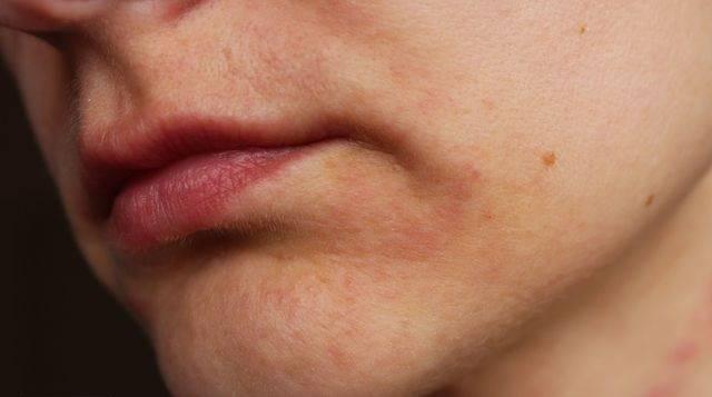 Сыпь вокруг рта