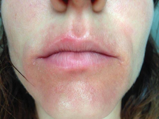 Аллергия на пасту для зубов