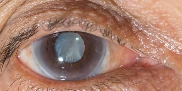 Противопоказания к принятию глазных капель