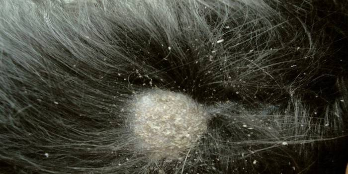 Себорейный дерматит на голове