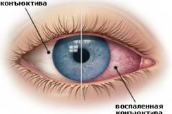 Конъюктивит - один из сопровождающих симптомов атопического дерматита
