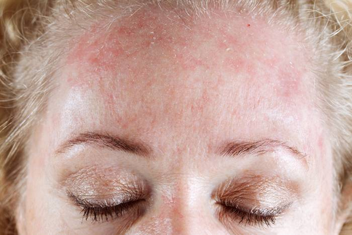 Аллергия на холод: лечение, симптомы