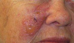 Аллергия на лидокаин